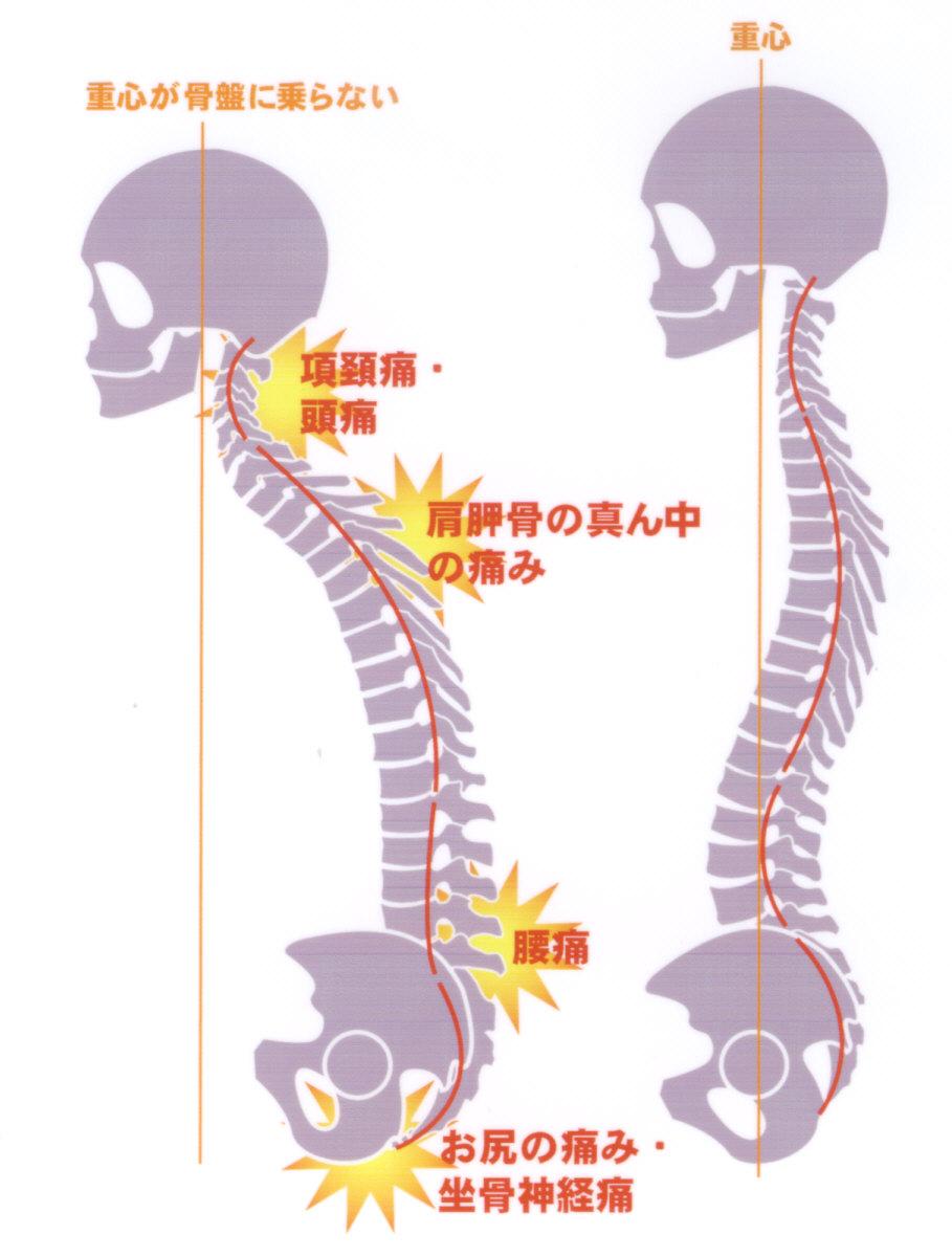 猫背の弊害 – 田無北口鍼灸院